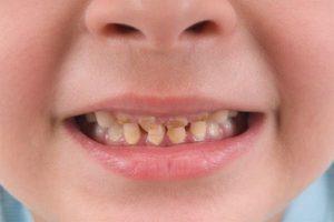 Vì sao răng trẻ bị vàng? cách chữa trị ra sao với từng trường hợp