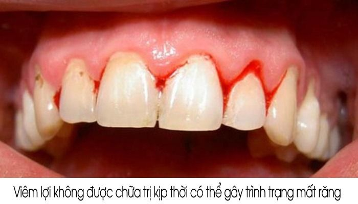 bọc răng sứ bị viêm lợi có thể mất răng
