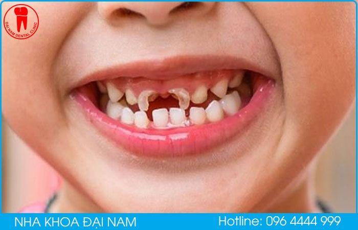 dấu hiệu răng trẻ bị mủn