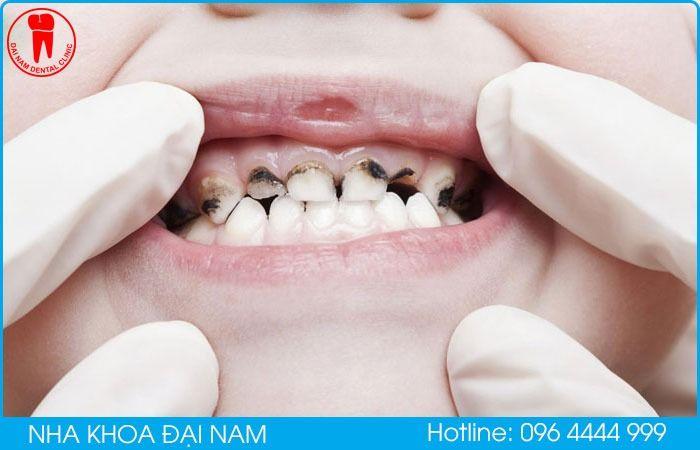 những ảnh hưởng khi răng trẻ bị mủn