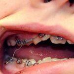 niềng răng bị đứt dây cung