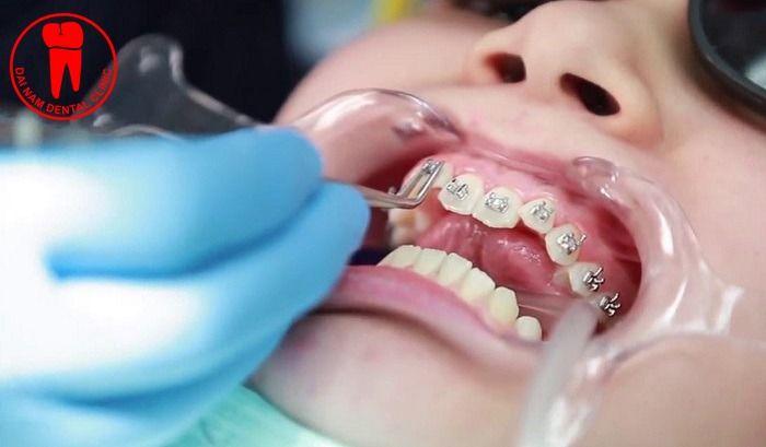 Làm gì nếu mắc cài bị rơi khi niềng răng