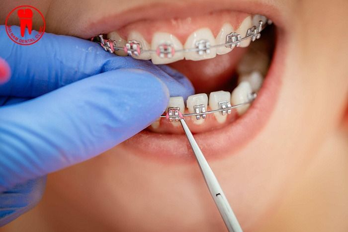 Niềng răng bị tuột dây cung thì phải làm sao?