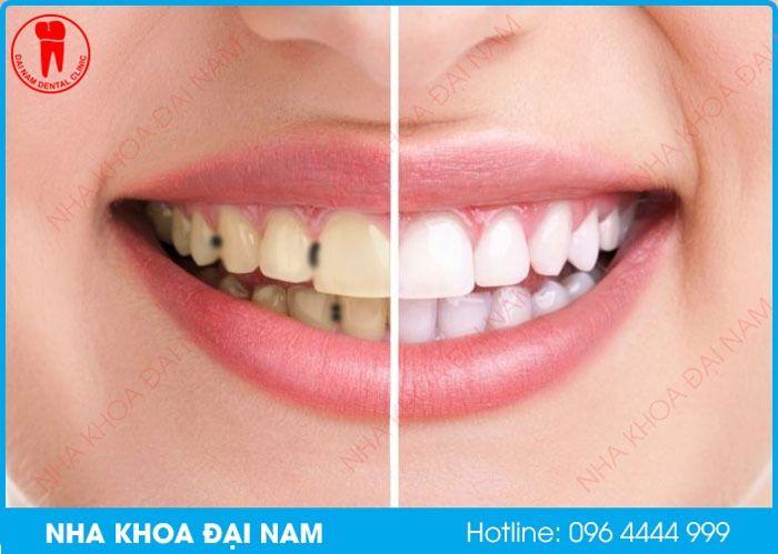 Răng bị đen có tẩy trắng được không