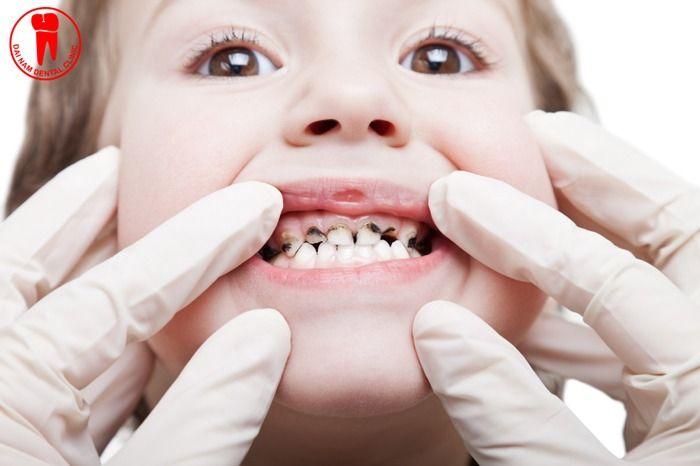 răng trẻ bị đen