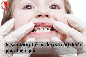 tại sao răng trẻ bị đen và cách khắc phục