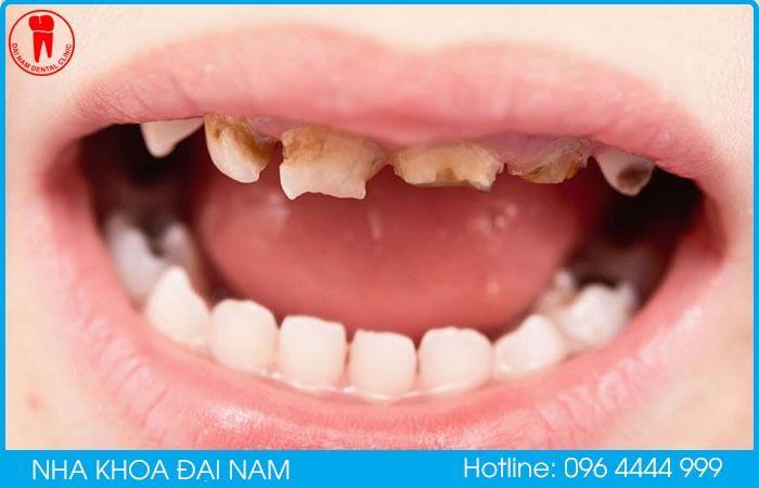 tại sao răng trẻ bị mủn