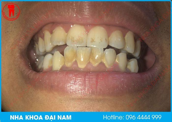 tẩy trắng răng bị loang lỗ