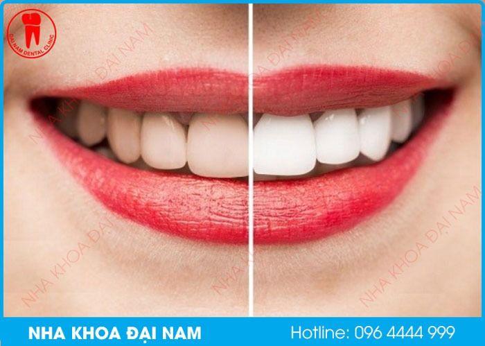 tẩy trắng răng là gì