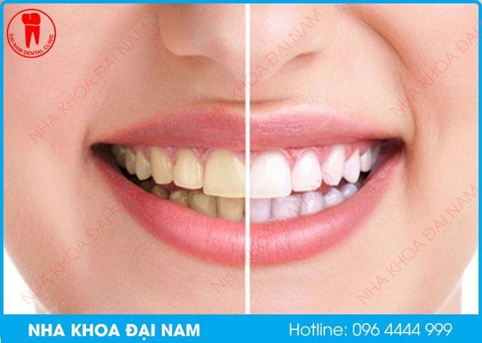 có phải tẩy trắng răng bị trắng nướu hay không