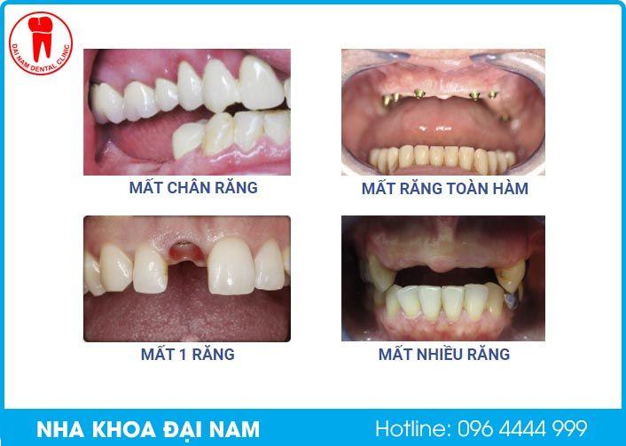 mất các loại răng