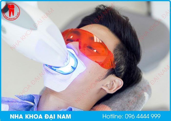 Ngăn ngừa tình trạng tẩy trăng răng bị trắng nướu như thế nào?