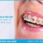 niềng răng bị viêm nướu