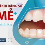 phải làm gì khi răng sứ bị mẻ