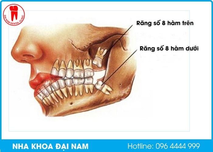 Răng số 8 hàm trên và hàm dưới