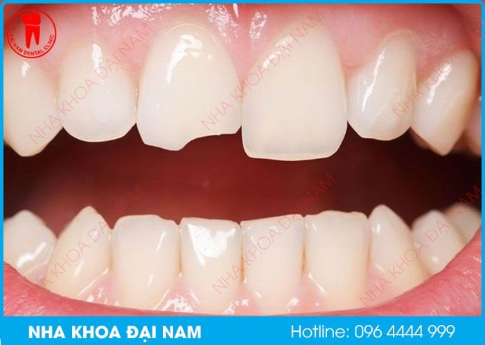 răng sứ bị mẻ phải làm sao