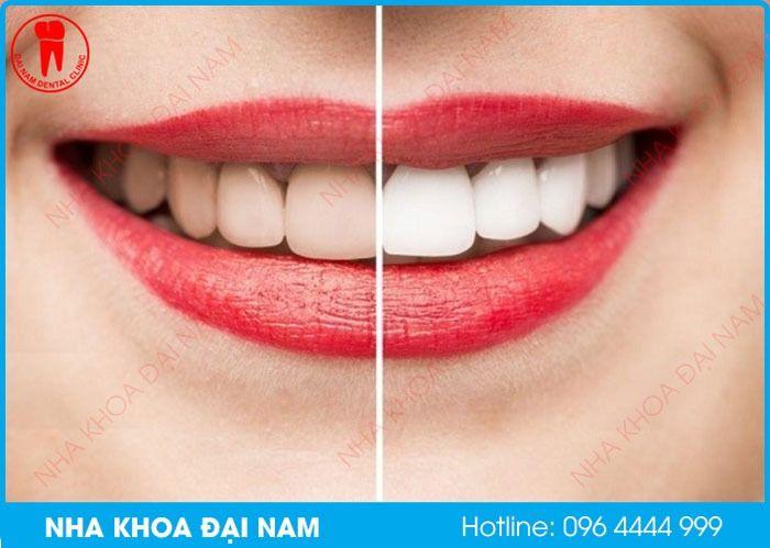 tại sao tẩy trắng răng bị ê buốt