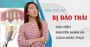tìm hiểu về răng implant bị đào thải