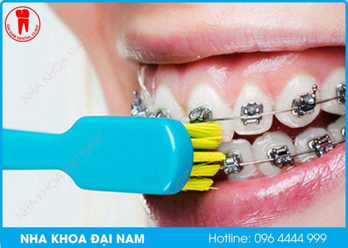 vệ sinh răng miệng kém gây viêm lợi khi niềng răng