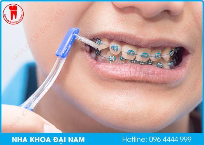Vệ sinh răng miệng đúng cách giúp ngăn ngừa viêm nướu khi niềng răng