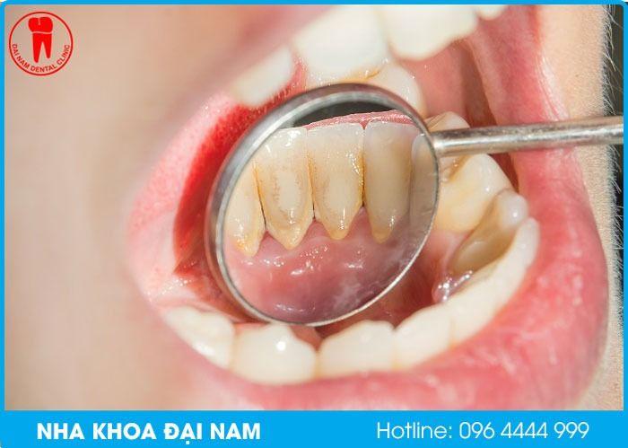 vôi răng gây hôi miệng mặc dù đã đánh răng sạch sẽ