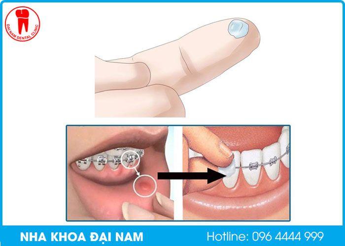 cách dùng sáp nha khoa