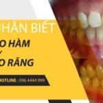 cách nhận biết hô do hàm hay hô do răng