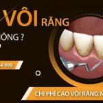 cạo vôi răng có đau không