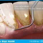 cạo vôi răng có đau không? chi phí điều trị