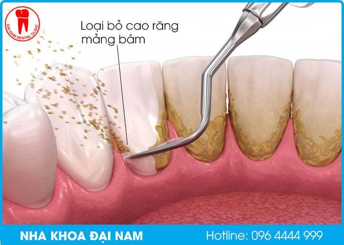 cạo vôi răng tại nha khoa