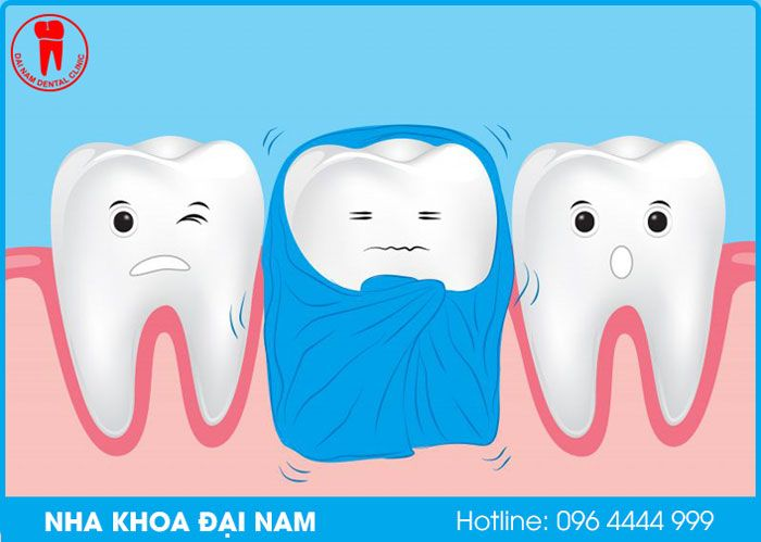 hậu quả của răng bị ê buốt khi ăn nóng lạnh