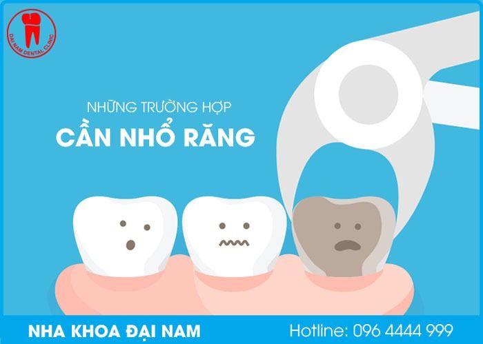những trường hợp cần nhổ răng