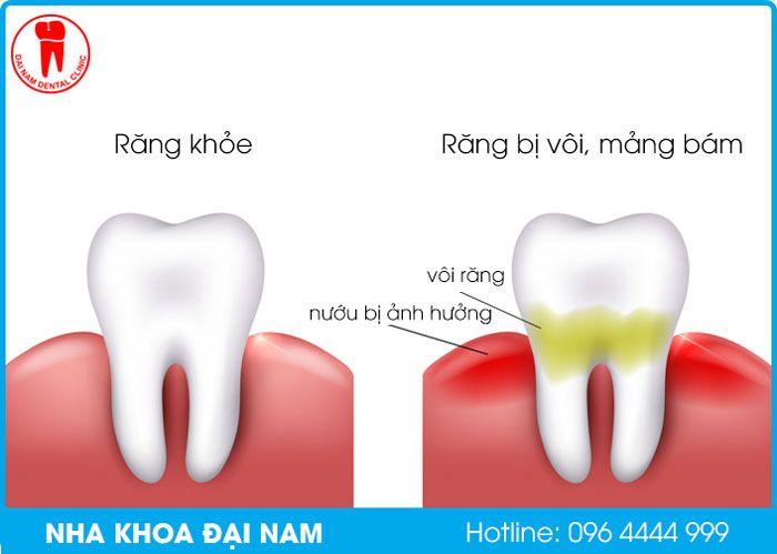 so sánh răng bình thường và răng bị vôi