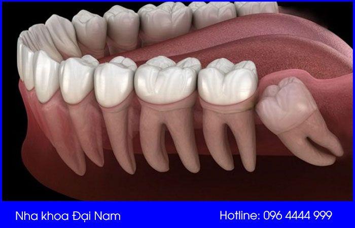 hình ảnh mô tả răng mọc ngầm