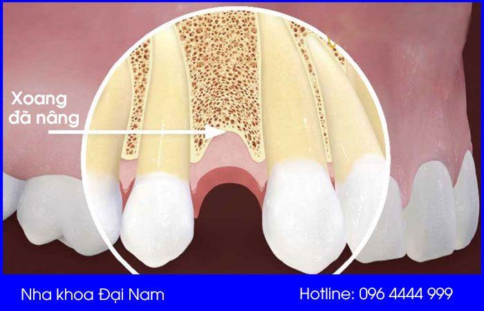 nâng xoang trong cấy ghép implant