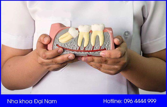 nhổ răng ngầm có ảnh hưởng gì không