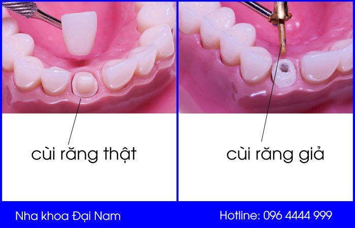 tìm hiểu cùi răng giả là gì