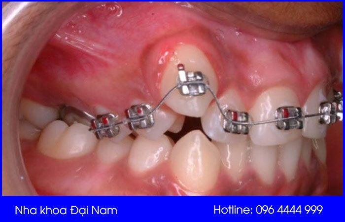 chữa răng mọc chồi bằng phương pháp niềng răng