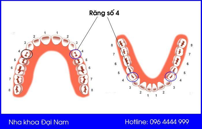 răng số 4