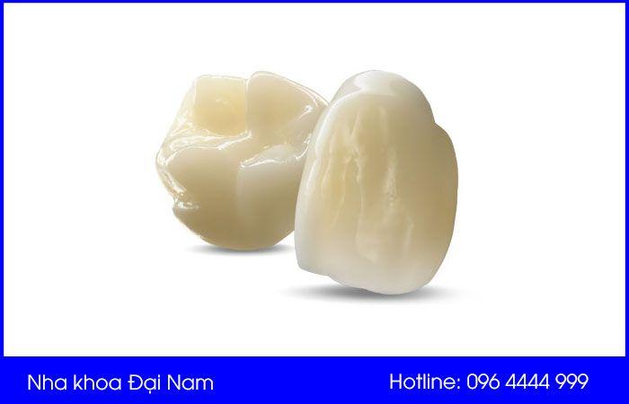 răng sứ Lava Plus 3M ESPE có tốt không