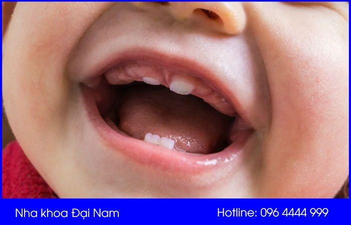 thứ tự mọc răng của trẻ